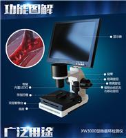 正品包邮XW3000微循环检测仪末梢循环显微镜