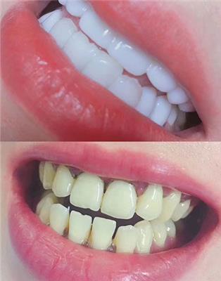 濮阳比较正规的牙齿美牙培训